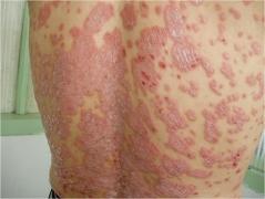 常州青医附院皮肤科专家介绍牛皮癣的防治事项有哪些