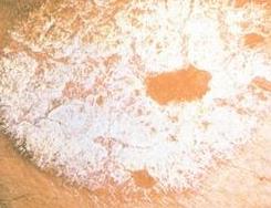 牛皮癣疾患呈现的危害