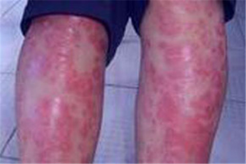 皮肤上有点状出血现象是牛皮癣吗
