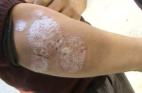 免疫力低的老年人更容易患上银屑病吗